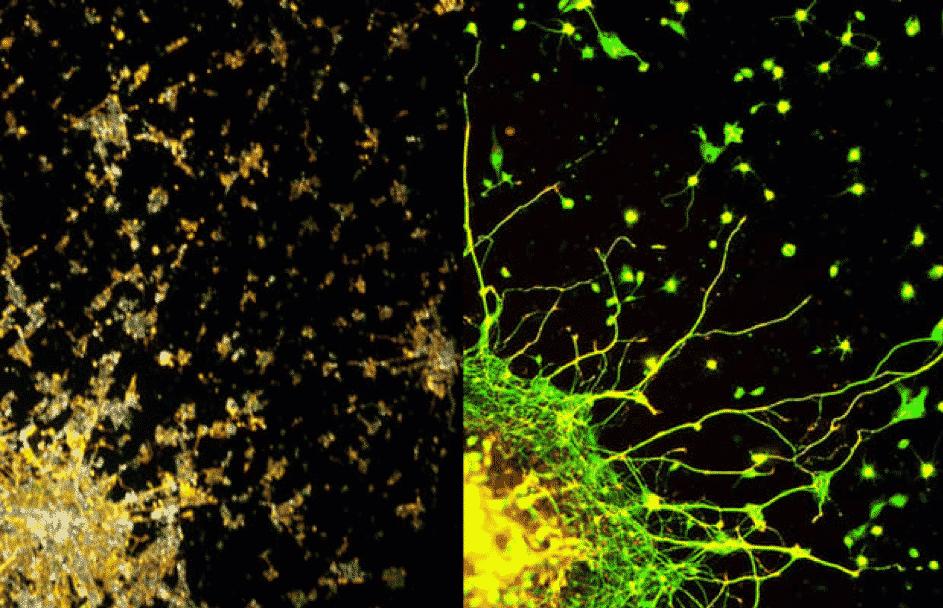 A gauche, une photo de Londres la nuit et à droite, une photo du réseau neuronal du cerveau. Regardez comme cette similitude est frappante.